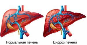 Декомпенсированный цирроз печени: сколько живут, что такое декомпенсация