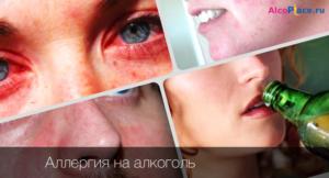 Аллергия на алкоголь симптомы