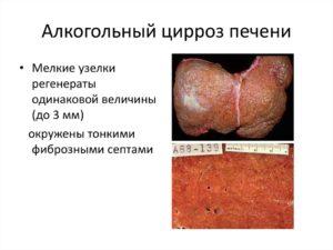 Алкогольный цирроз печени: симптомы и лечение