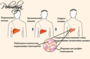 Алкогольный гепатит печени: симптомы, лечение и прогноз жизни