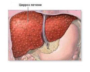Цирроз печени симптомы мкб