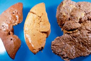 Что такое другой и неуточненный цирроз печени
