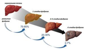Четыре стадии цирроза печени