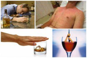 Аллергия на спиртные напитки: причины, симптомы и лечение