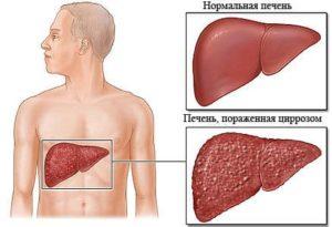 Циррозы печени клинические рекомендации