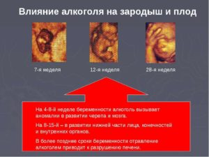 Пьяное зачатие: негативное влияние алкоголя на развитие плода