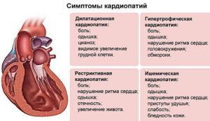 Алкогольная кардиомиопатия: что это такое, симптомы