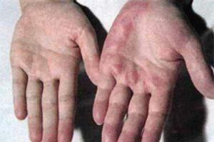 Признаки цирроза печени у алкоголиков: симптомы и развитие