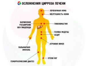 Основные проявления цирроза печени