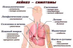 Причины повышения температуры при циррозе печени