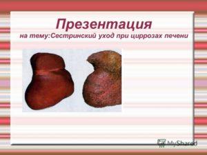 Презентация на тему:Сестринский уход при циррозах печени. - презентация