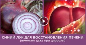 Как лечить цирроз печени красным луком