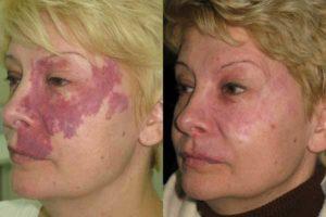 Красные пятна на лице после алкоголя: возможные причины и лечение