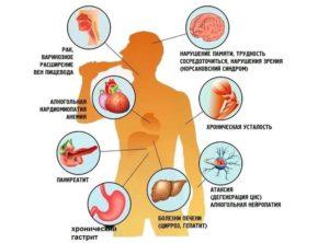 Изменения в организме при алкоголизме и методы их лечения
