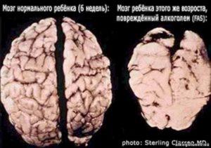 Алкоголь после сотрясения мозга, можно ли пить, последствия и осложнения