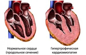 Кардиомиопатия: смерть, в каких случаях возможны последствия