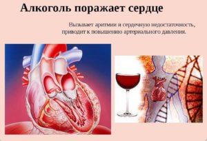 Болит сердце после алкоголя: причина и первая помощь