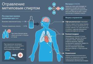 Отравление метиловым спиртом: симптомы, лечение