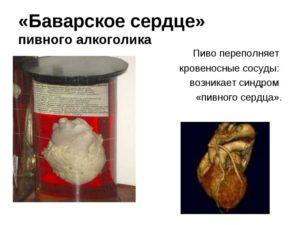 Пивное сердце: причины и симптомы заболевания