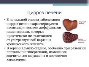 Размеры печени при циррозе, развитие болезни