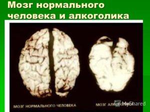 Мозг алкоголика и здорового человека (фото и видео)