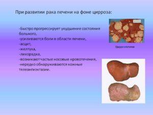 Цирроз печени излечим или нет: отзывы больных.