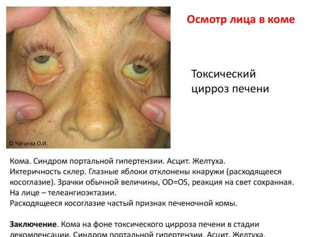 Признаки цирроза печени у мужчин алкоголиков