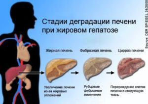 Алкогольный гепатоз печени: симптомы, лечение