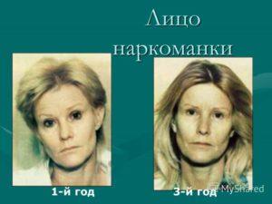 Лицо алкоголика: изменение внешности, отечность, покраснение