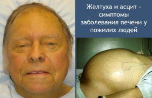 Смерть от цирроза печени: стадии заболевания