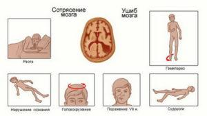 Сотрясение мозга и алкоголь: совместимость и последсвтия