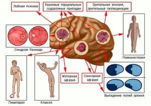 Анозогнозия: что это такое и каковы симптомы поражения