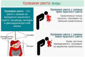Рвота с кровью: причины после алкоголя