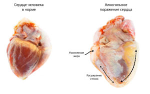 Болит сердце после алкоголя: причины, последствия