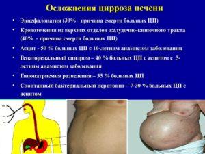 Отеки при циррозе печени: причины, лечение