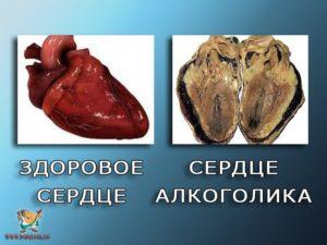 Влияние алкоголя на сердце: что происходит с сосудами при употреблении алкоголя