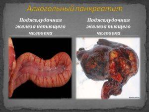 Панкреатит алкогольный: симптомы, лечение, последствия