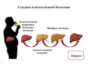 Печень алкоголика: симптомы, стадии, лечение