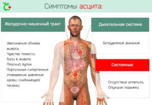 Асцит: лечение, симптомы, диета