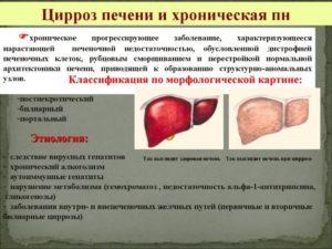 Билиарный цирроз печени: причины, симптомы