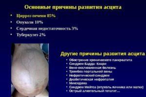 Водянка при циррозе печени, лечение асцита