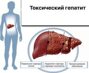 Вирусный токсический алкогольный гепатит
