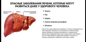 История болезни цирроз печени: причины, симптомы
