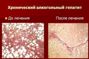 Алкогольный гепатит симптомы и лечение хронического, острого и токсического гепатита